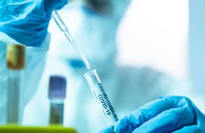 Sa kohë duhet të prisni që të vizitoni familjen pasi të keni marrë vaksinën anti-COVID?